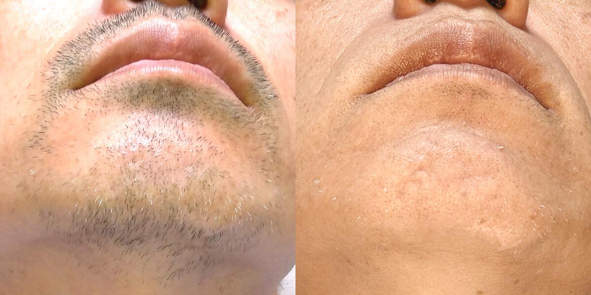 家庭用脱毛器で髭脱毛を半年間に30回した結果…ビフォーアフター写真