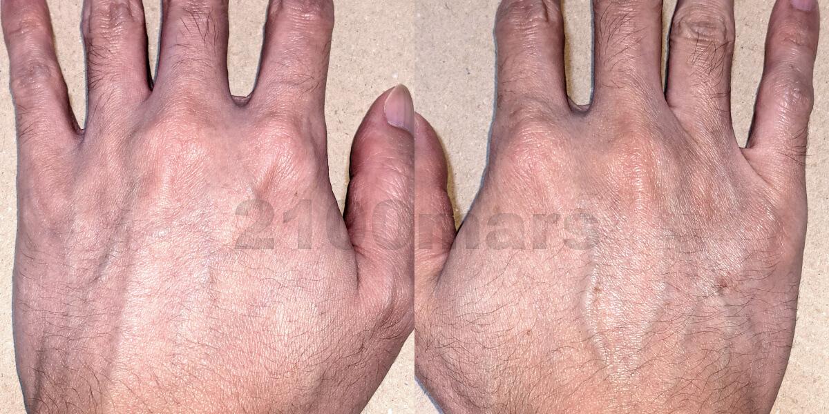 hair removal challenge opusbeauty03 vs sarlisi