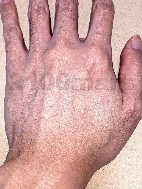sarlisi脱毛器で手 指 甲 腕の脱毛にチャレンジ