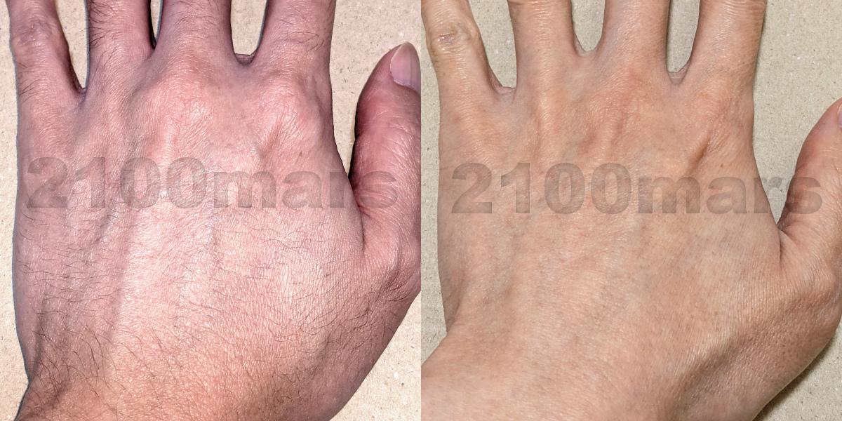 Sarlisi脱毛器とオーパスビューティー03で手と腕の脱毛比較 ビフォーアフター写真 左手