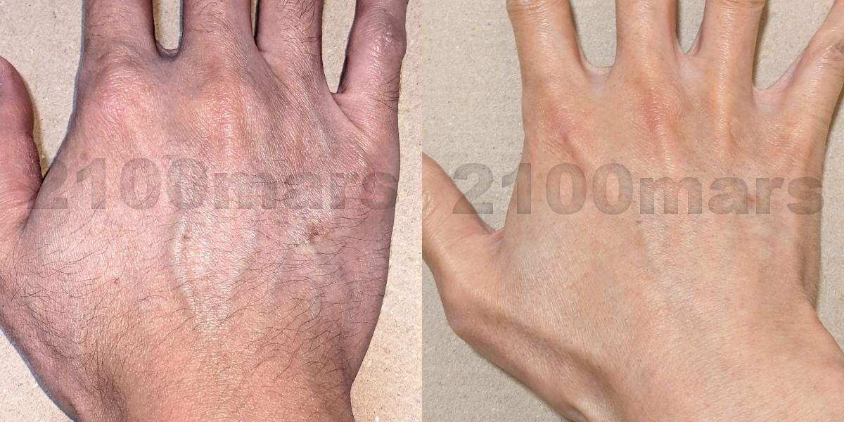 Sarlisi脱毛器とオーパスビューティー03で手と腕の脱毛比較 ビフォーアフター写真 右手