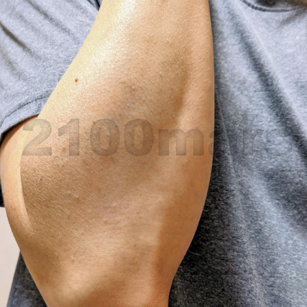 Sarlisi脱毛器とオーパスビューティー03で手と腕の脱毛比較 8回 8週目 右腕