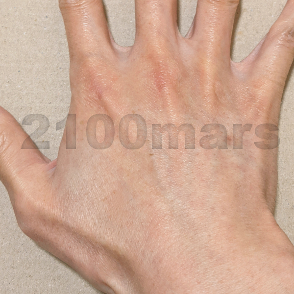 Sarlisi脱毛器とオーパスビューティー03で手と腕の脱毛比較 8回 8週目 右手